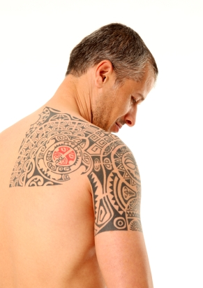 Atlanta Laser Tattoo Removal