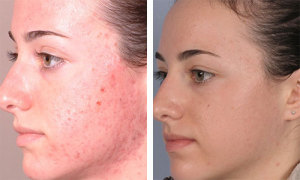 silkpeel dermalinfusion treatment results atlanta ga
