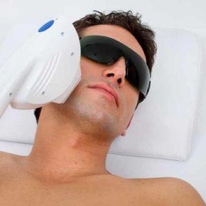 micro laser peel in atlanta ga