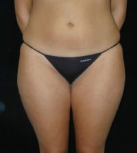 liposuction body contouring atlanta duluth ga