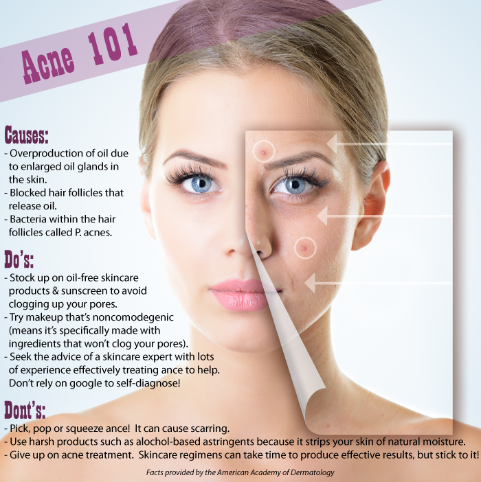 Acne 101: Hard Facts about Acne