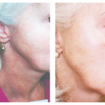 Brown Spot Removal Patient 2