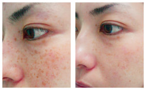 Brown Spot Removal Patient 3