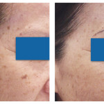 Brown Spot Removal Patient 5