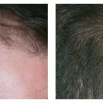 birthmark removal atlanta ga