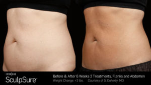 sculpsure before and after atlanta