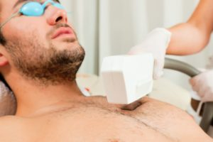 how does laser hair removal really work