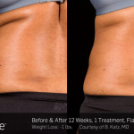 Before & After SculpSure