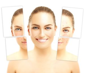 acne treatments in atlanta ga