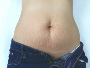 What You Can Do About Stretch Marks