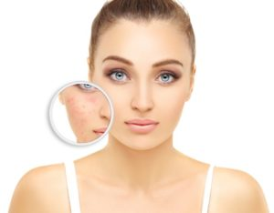 Everything You Should Know about Rosacea